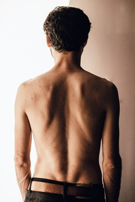 ejercicio para escoliosis