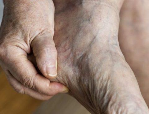 Consejos para el cuidado del pie en nuestros mayores