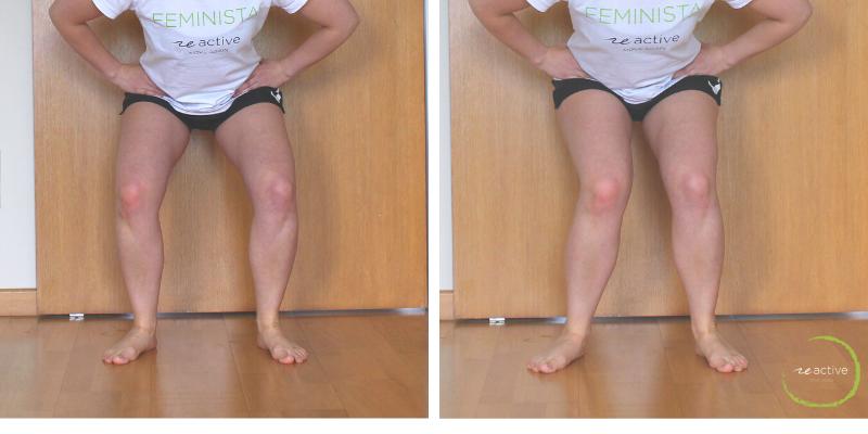 Tus Rodillas Hacia Dentro Fisioterapeuta En Lugo Clínica Reactive